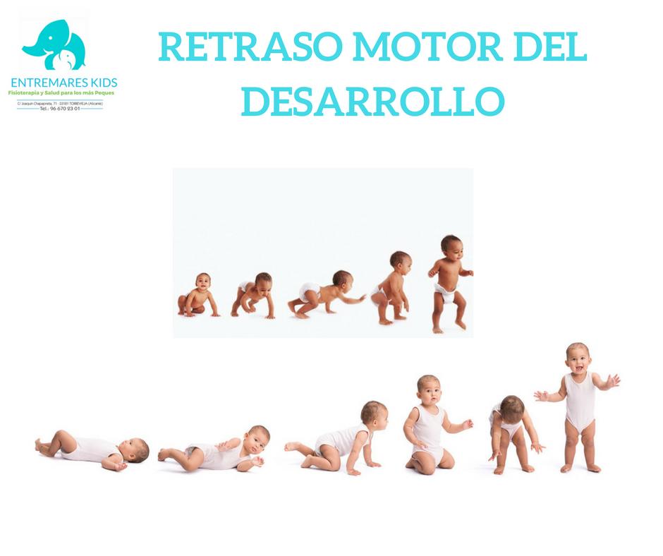 RETRASO MOTOR DEL DESARROLLO
