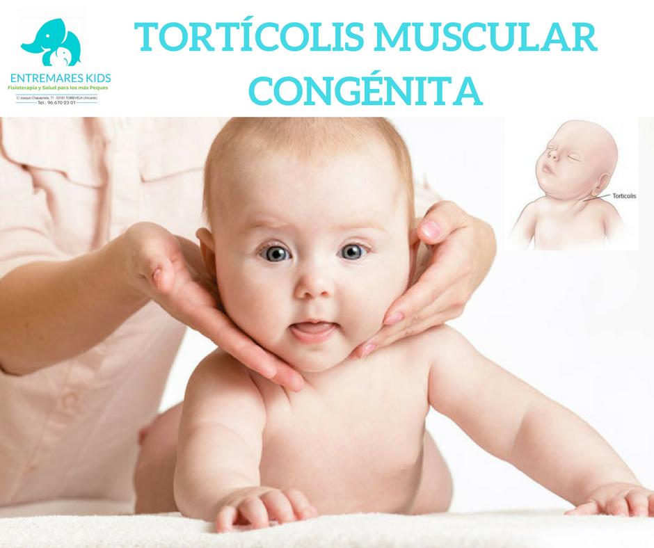 TORTiCOLIS MUSCULAR CONGeNITA
