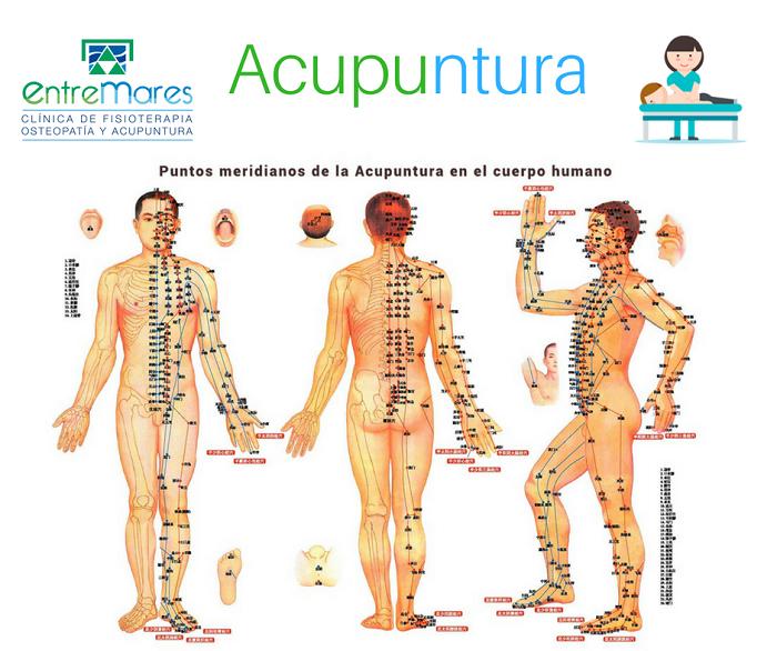 acupuntura torrevieja