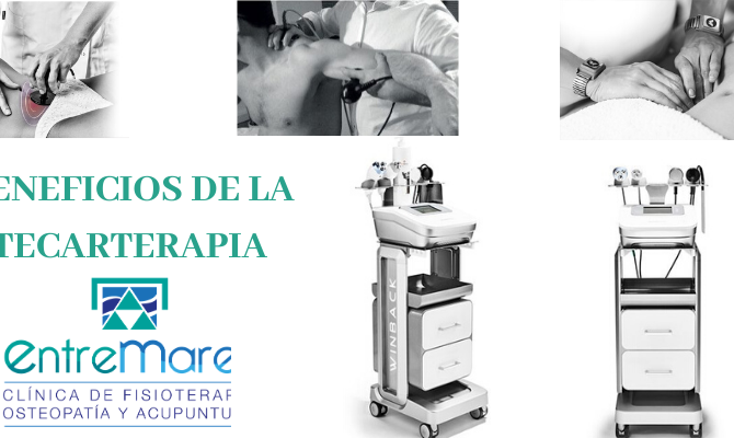 BENEFICIOS DE LA TECARTERAPIA