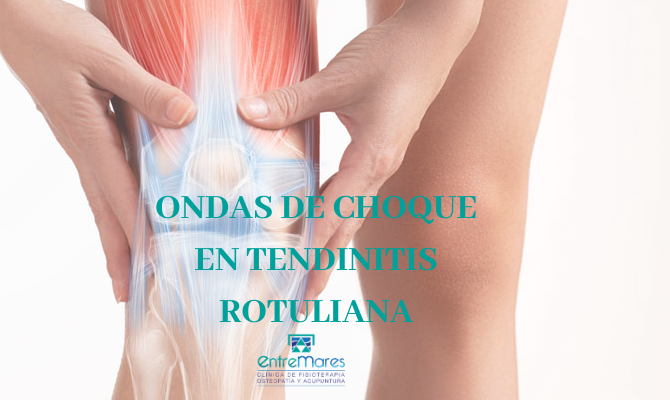 ONDAS DE CHOQUE EN TENDINITIS ROTULIANA
